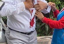 【區議會選舉】擺街站遇襲 何君堯遭男子刺傷胸口